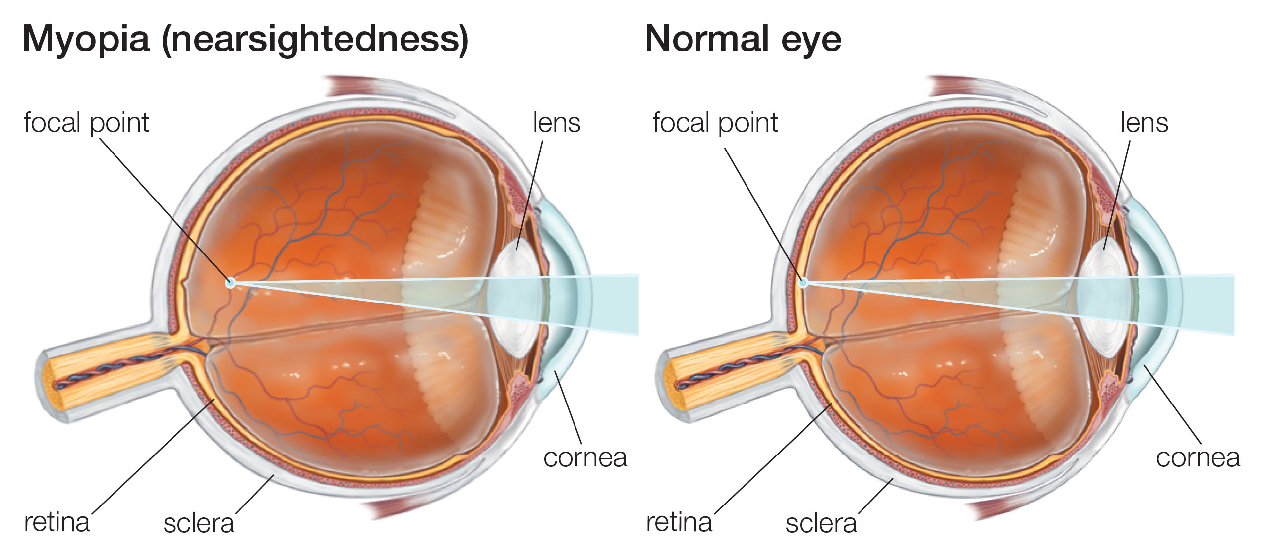 eye diseases nearsightedness Nearsightedness myopia is a condition where the eye is longer than it should be and therefore the rays from the observed object are concentrated in front of the focal point, which creates a blurred image.